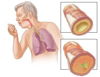 Obat Tradisional Bronkitis