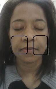 Anti-Wrinkle Skin Challange