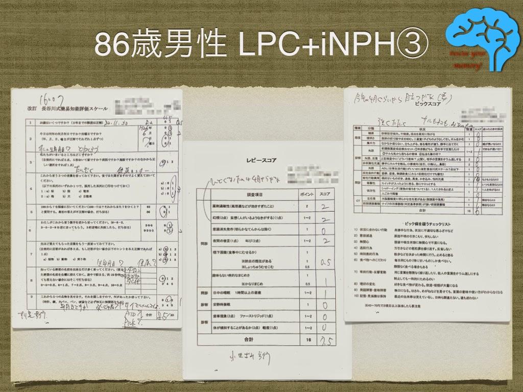 LPCと特発性正常圧水頭症の合併③