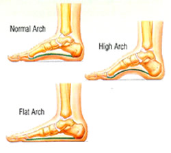 have flat foot: