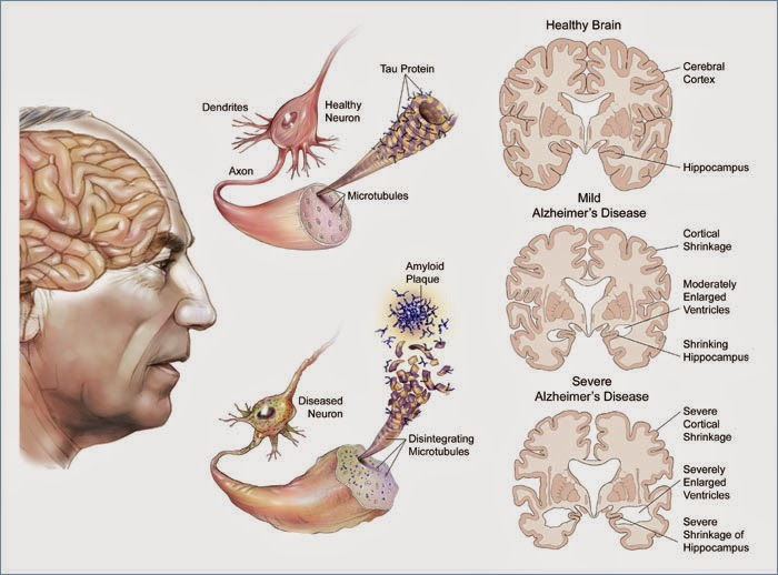 a clinical description of the irreversible brain disease alzheimers disease