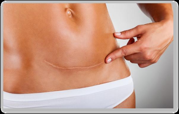 Abdominoplastia, periculoasa sau nu?