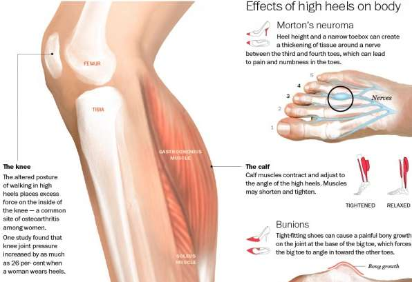 high heels and its effect on body