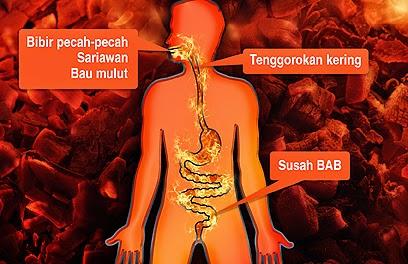Obat Herbal Panas Dalam