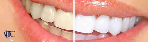 Clarear os dentes caseiro
