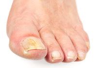 Μύκητες στα νύχια των ποδιών