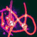 ebola virus philippines