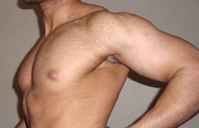 Are stretch marks from lifting bad