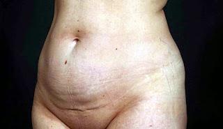 Tehnik Baru Membentuk Otot Perut Bagian Bawah Selama 1 Bulan