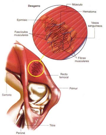 desgarro-músculo