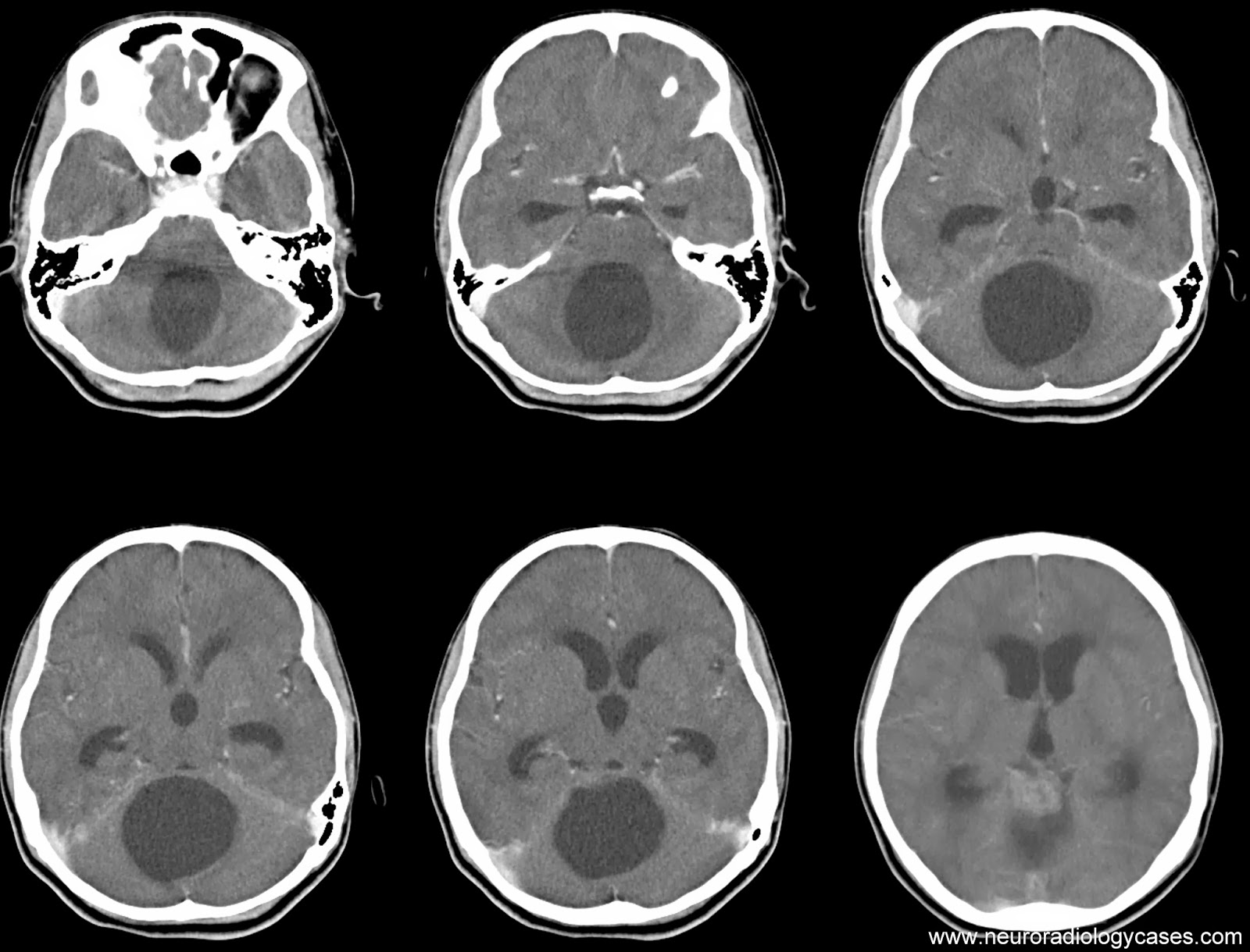 neuroradiology cases