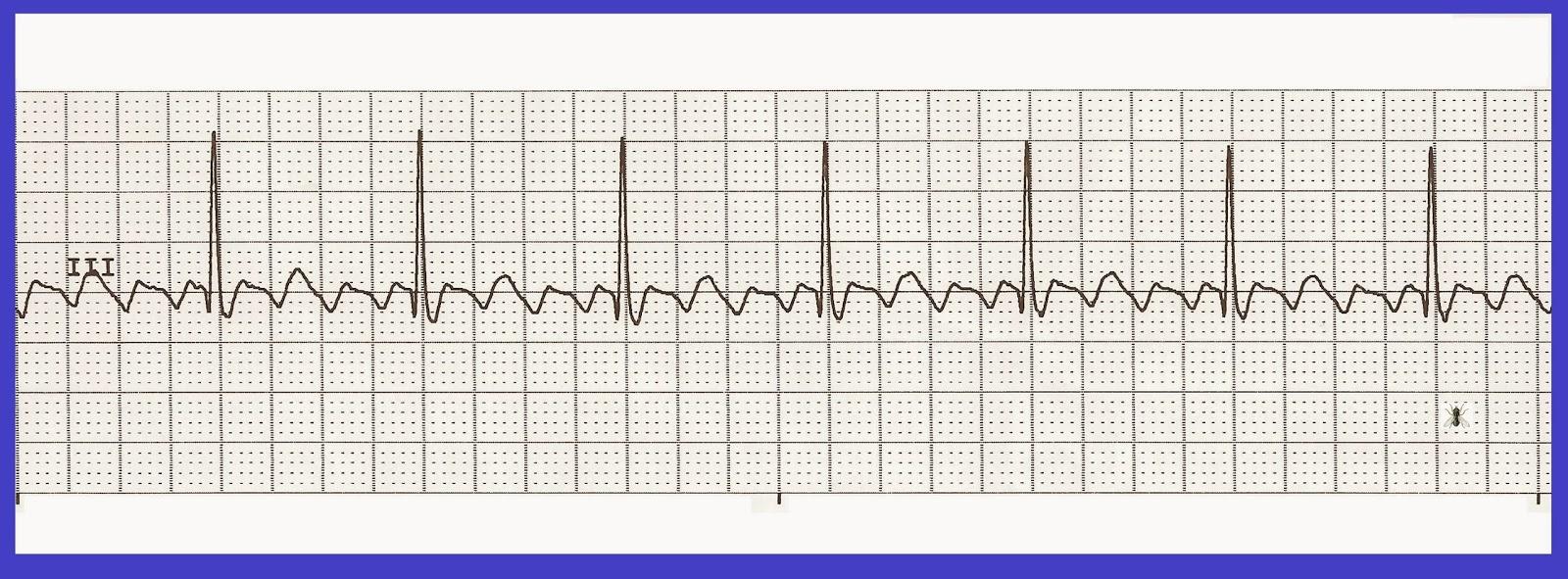 Atrial Flutter vs Atrial Fibrillation AFib: 11 Common