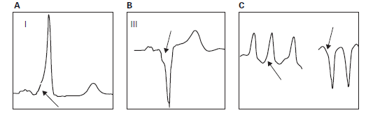 A. Normal sinus rhythm with PR interval shortening, a delta wave (arrow), and a widened QRS complex. B. Normal sinus rhythm with PR interval shortening, a delta wave (arrow), and a widened QRS complex. Note that the delta wave has a negative polarity. C. Antidromic tachycardia with wide QRS complexes. Note the initial slurring of the QRS complex, which is termed the delta wave (arrow).