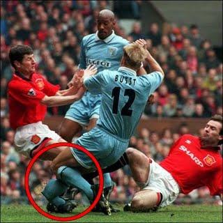 gambar cidera terparah yang pernah terjadi di lapangan sepak bola