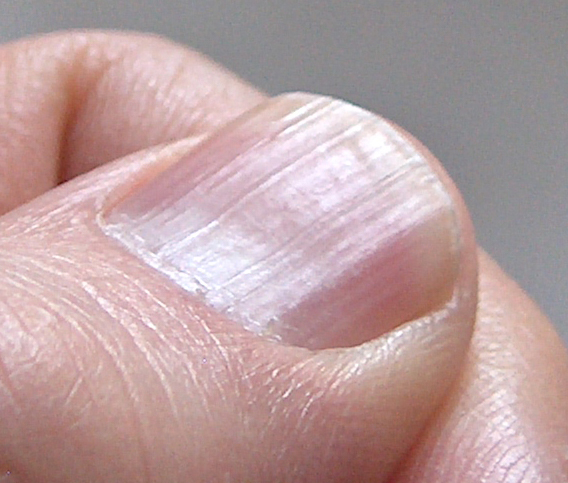 Fingernails and Thyroid Disease http://www.healthsolutionssa.com/2011/02/your-fingernails-may-reveal-diseases-in.html