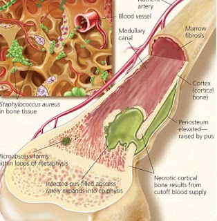 Phương pháp điều trị viêm xương tủy xương