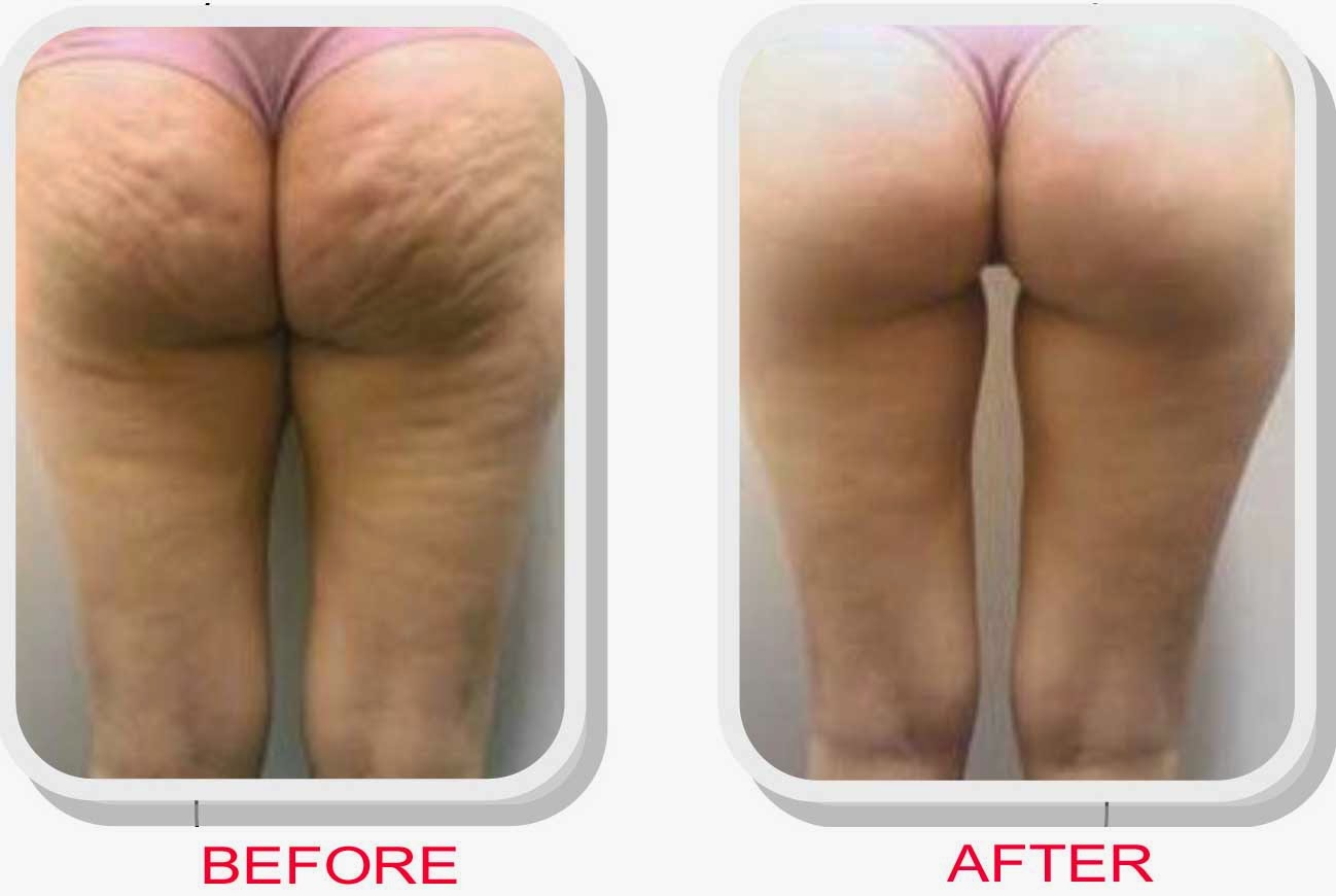 How to reduce cellulite on legs