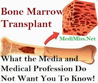 Bone Marrow Transplant - What the Media and Medical Profession Do Not Want You To Know!