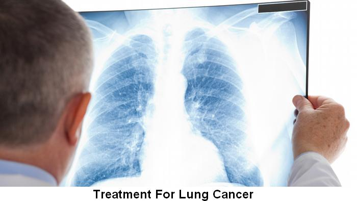 lung cancer causes and treatment Lung cancer - an easy to understand guide covering causes, diagnosis, symptoms, treatment and prevention plus additional in depth medical information.