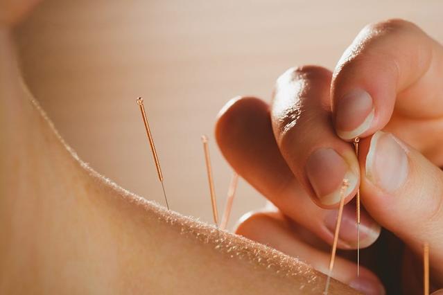 Como trabalhar com Dry Needling?