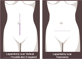 Laparotomy and Myomectomy - Fibroids Treatment