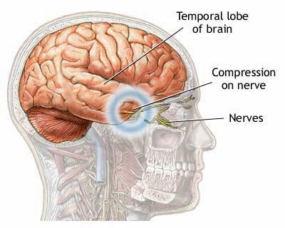 Obat Epilepsi Herbal