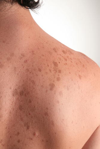 Melasma and facial discoloration treatments -Miramar