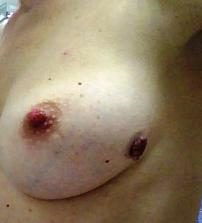 Εικόνες μαστολογικού ενδιαφέροντος -2