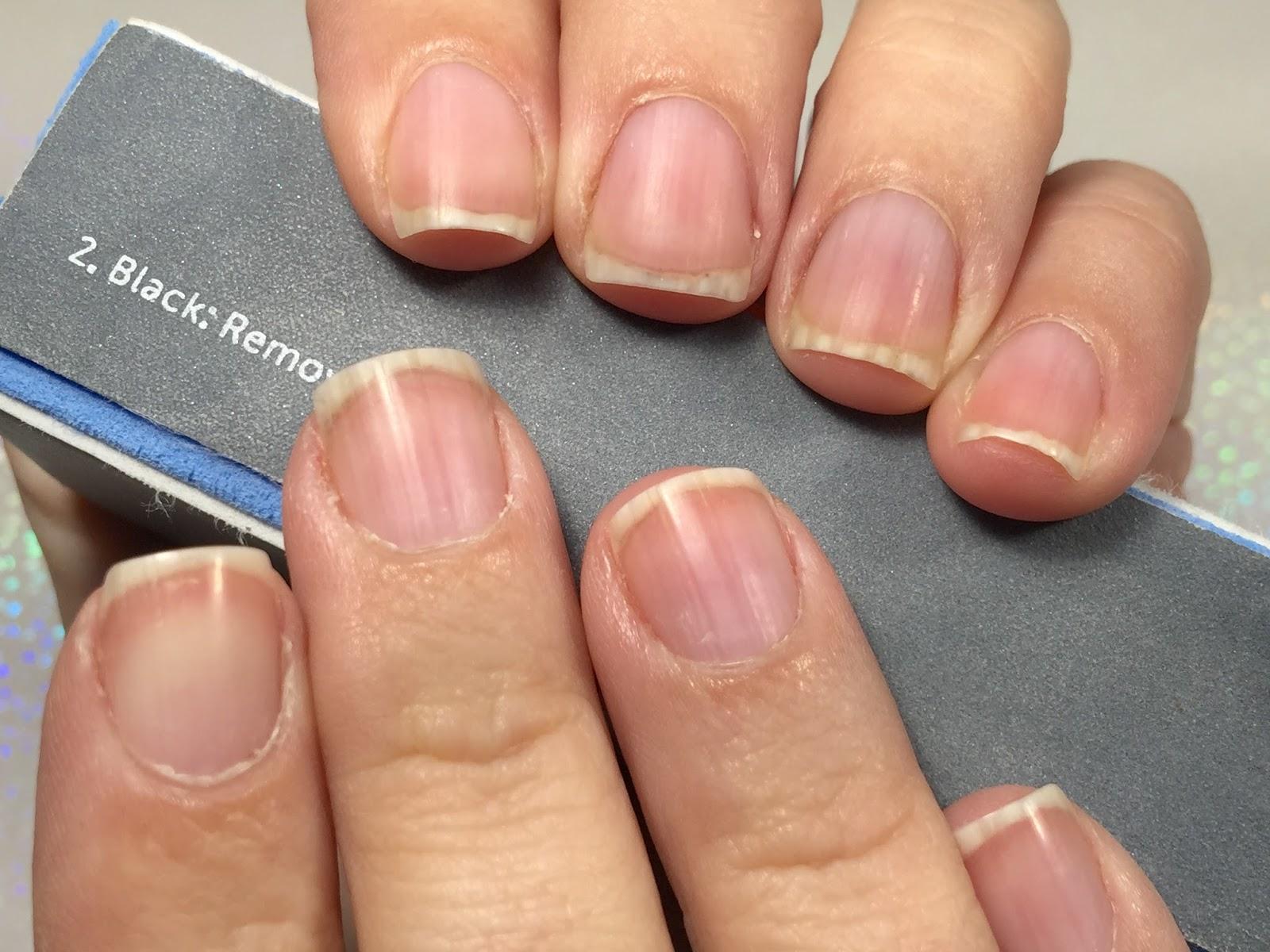 Nails Art: Nail Recovery