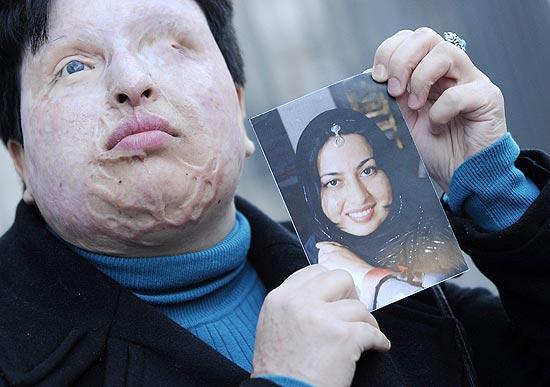 Irã adia aplicação de pena a homem condenado à cegueira