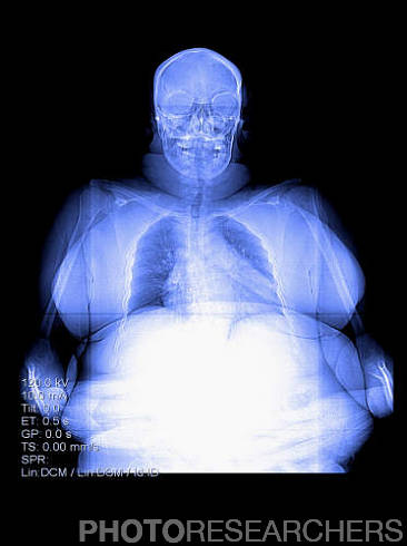 X-Ray of an Obese Person