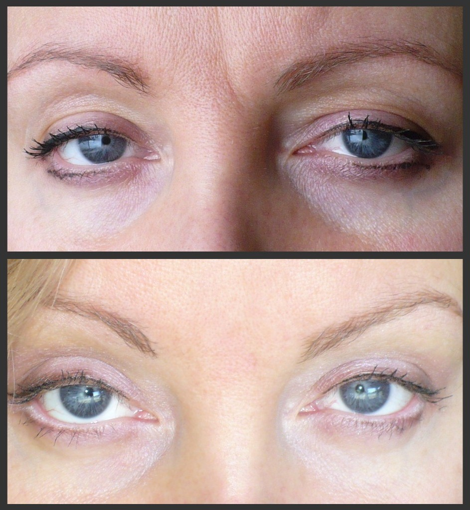 Raw Vegan Before And After Eyes