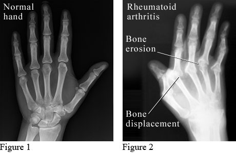Normal Hand and Hand with Rheumatoid Arthritis