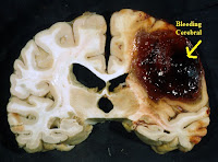 Intracerebral Hemorrhage Stroke Medical Treatment Therapy