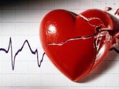 La donación en parada cardiaca constituye la única opción para seguir siendo líderes en trasplantes