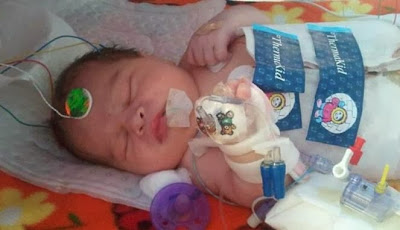 Agar dapat Bertahan Hidup, Bayi ini Harus dibekukan Selama 72 Jam