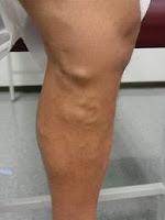 varicose veins in leg