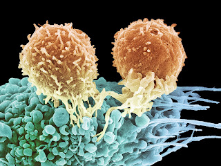 Protein May Predict Patients Response To Immunotherapy For Melanoma