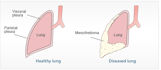 Types Of Mesothelioma The Anatomy And Function Of The Pleura