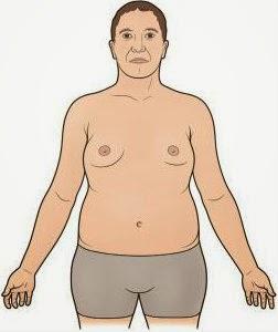 Gambar Gejala Sindrom Klinefelter Diagnosis,