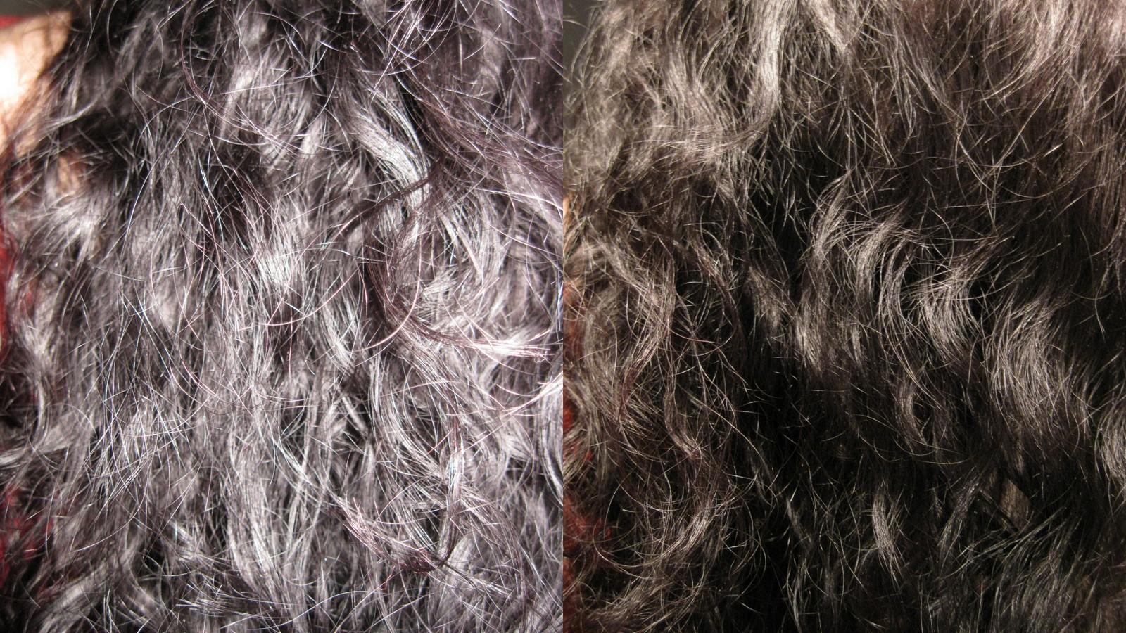 Die Frage die Antwort vom Haarausfall