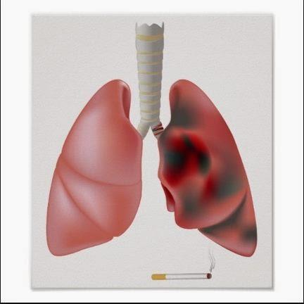La vacuna contra el cáncer de pulmón estará disponible en julio