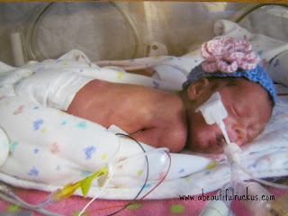 preemie on ventilator