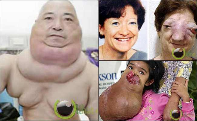 8 Kasus Penyakit Tumor yang paling Mengerikan di Dunia