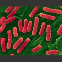 Multiple Sources of E-Coli Outbreak Attributed – Spreading Faster Than H1N1