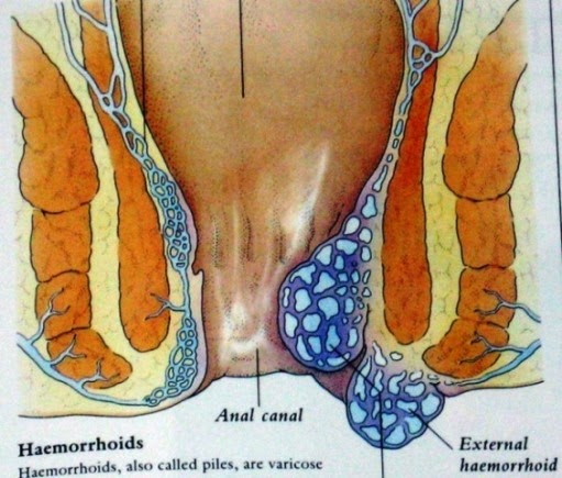 Image Obat herbal khusus wasir atau ambeyen