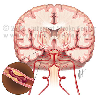 Ischemic Stroke Nursing Diagnosis