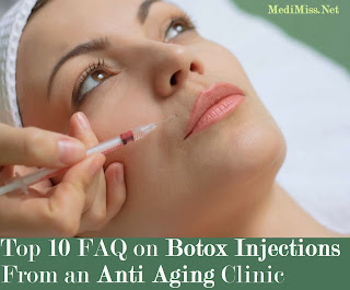 Top 10 FAQ on Botox Injections From an Anti Aging Clinic