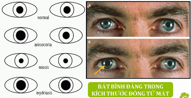 Hình 6: bất thường trong kích thước đồng tử mắt trên người nhiễm bệnh