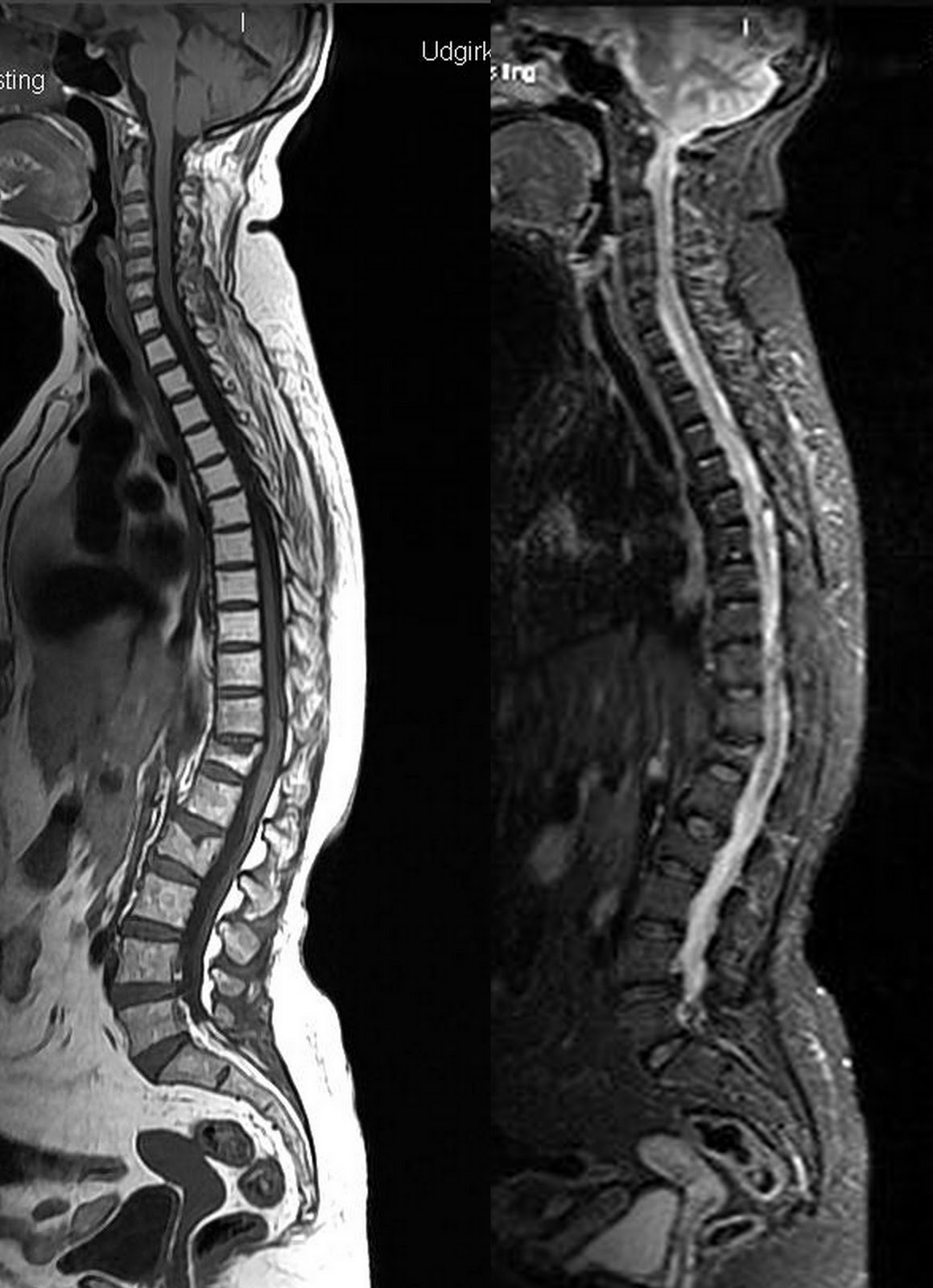 MRI Sagittal T1 and STIR screening of whole spine shows radiotherapy